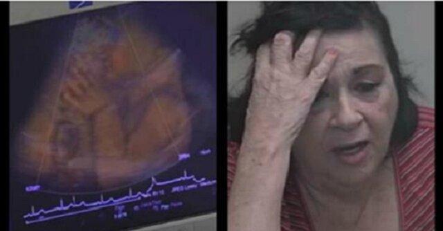 Kiedy zobaczyła nagranie usg swojego wnuka, przeżyła przerażenie. Nie uwierzycie, co robiło dziecko