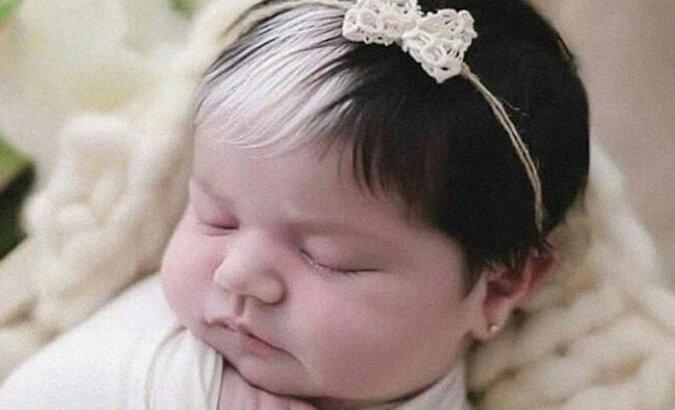 Dziecko, które urodziło się z białym pasmem włosów ma już 2 lata. Jak teraz wygląda dziewczyna?