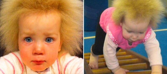 Jak teraz wygląda dziewczynka z zespołem włosów niedających się uczesać? Ma już 10 lat
