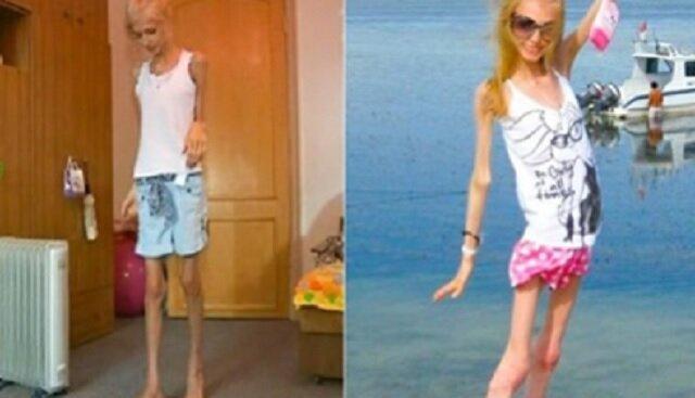 Jak dziś wygląda Ksenia Bubenko, która ważyła zaledwie 23 kilogramy