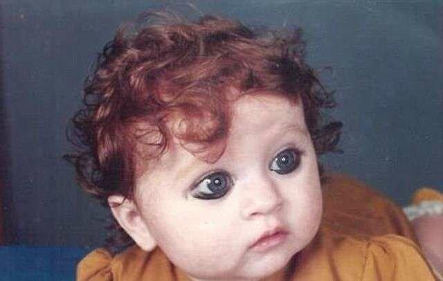 Dziecko było wyśmiewane za swój niezwykły wygląd. Potrafiło jednak dorosnąć i zaakceptować siebie