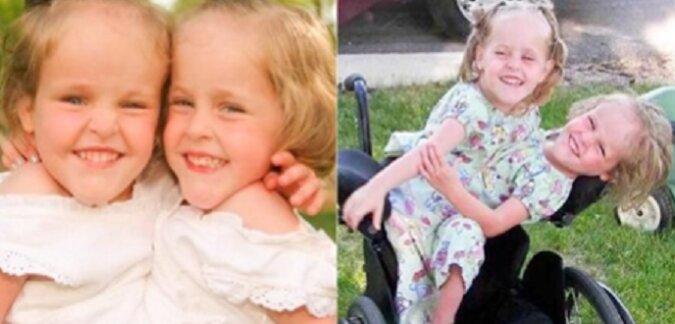 Te syjamski bliźnięta zostały odseparowane w wieku 4 lat. Teraz mają po 18 lat. Jak wygląda ich życie?