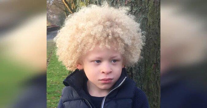 5-letni albinos nie lubił swojego wyglądu, dopóki nie znalazł pewności siebie dzięki modelingu